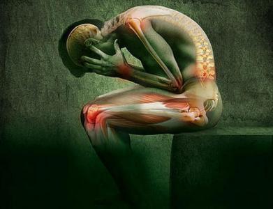 Nuevos datos sobre dolor crónico en España